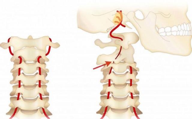 椎骨動脈圧迫のイラスト