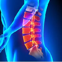 脊柱管狭窄症のイラスト
