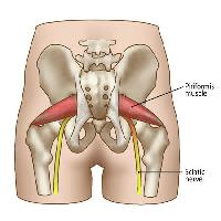 梨状筋と坐骨神経のイラスト