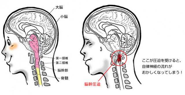 脳幹が圧迫されているイラスト