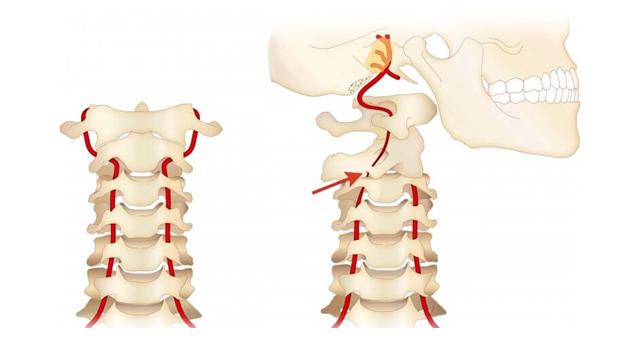 首の血管圧迫の図