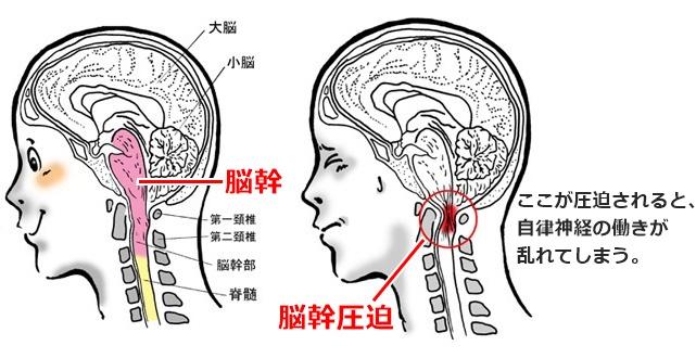 脳幹圧迫の図